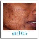 acne, que hace un dermatologo, tratamientos para acne, cicatrices, imagenes del acne, eliminar las cicatrices,, quitar manchas de la piel, manchas de la cara