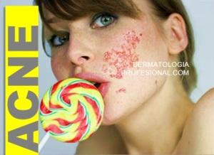 acne que hace un dermatologo tratamientos para acne cicatrices