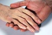 manchas en la cara, manchas de la edad, marcas de acne, manchas en la piel, melasma