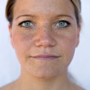 manchas en la piel, manchas en la cara, marcas de acne